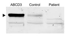 Fig.2 Microscopical and immunoblot analysis in cultured primary skin fibroblasts of the ABCD3-deficient patient.