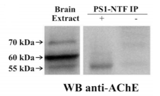 Fig.1 Human embryonic brain extracts were immunoprecipitated with or anti-AChE MA3-042 antibodies.