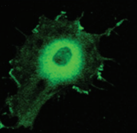 Fig.2 Cellular colocalization of PS1 and AChE.