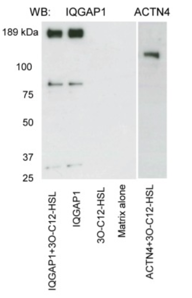 Fig.1 Detection of IQGAP1 and actinin 4 in the eluates, after SDS-PAGE and Western blot analysis. Eluates described in (A) were analyzed here.