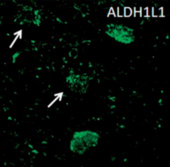 Fig.1 The immunofluorescent staining of ALDH1L1.