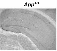 Fig.2 Immunohistochemistry for IDE protein was performed on App+/+ and App-/- brain tissue sections (n=4-6).