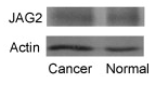Fig.1 Relative expression of NOTCH1, NOTCH3, and NOTCH4 and JAG2 proteins in endometrial adenocarcinoma.