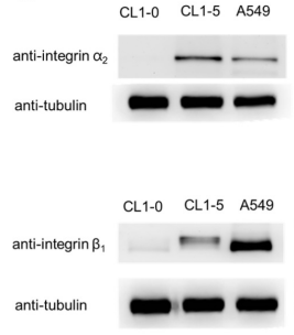 Fig.1 Western blot analysis of integrin α2 or β1 expression in the lung cancer cell lines CL1-0, CL1-5 and A549.