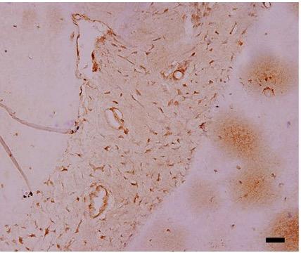 Fig.1 Immunohistochemical staining for fibronectin.