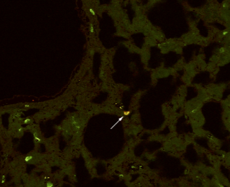 Fig.1 PDCD1 expression in endometrial and decidual tissues.