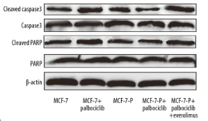 Fig.1 Expression of the apoptosis executors, cleaved caspase-3 and cleaved PARP, was detected in cells.