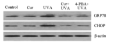 Fig.1 Western blot analysis was performed to investigate the protein expression of GRP78 and CHOP using specific antibodies.