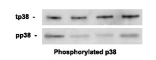 Fig.1 Human VEGF increases reduces phosphorylated MAP kinase/ p38 after focal cerebral ischemia.