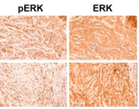Fig.2 Immunohistochemical staining of pERK, ERK and M30 in MDA-MB-468 xenografts (200× magnification times for E).