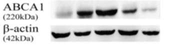 Fig.1 Effect of PPAR-γ agonist on ABCA1 were detected by western blotting.