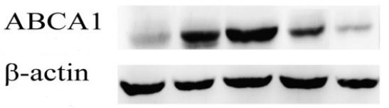 Fig.2 Effect of PPAR-c agonist on ABCA1 and CD36 expression.