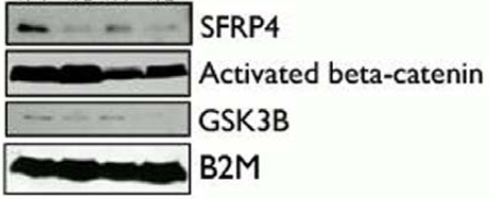 Fig.1 SFRP4 expression in cell lines, primary cultures and ascites.