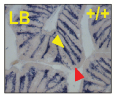 Fig. 1 Adamdec1-expressing cells [blue stain] were restricted to the lamina propria region [yellow arrows], and the epithelium [red arrows] demonstrated no expression in either the large or the small bowel.