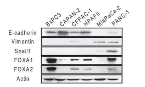 Fig.1 The expression of E-cadherin, vimentin, Snail1, FOXA1, and FOXA2 was analyzed by Western blot analysis in human PDA cell lines.