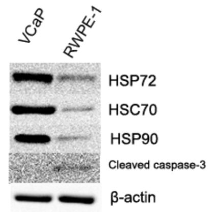 Fig.2 HSP72, HSC70, and HSP90 is Overexpressed in VCaP Compared with RWPE-1.