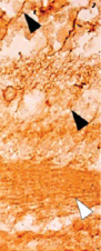Fig.2 Immunohistochemistry on wax sections from a control eye from a patient with diabetes using antibodies against LDHB.
