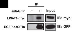 Fig.1 Co‐immunoprecipitation of EGFP‐ssSPTa with LPIAT1‐myc.