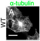 Fig.1 Transfected COS7 cells were examined by immunofluorescence using an anti-FLAG antibody (red) and an anti–α-tubulin antibody (green).