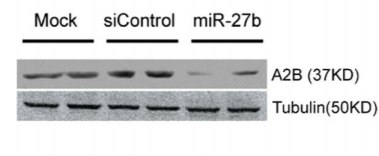 Fig.1 Protein expression of Adora2b was suppressed by miR-27b in NHP podocytes.