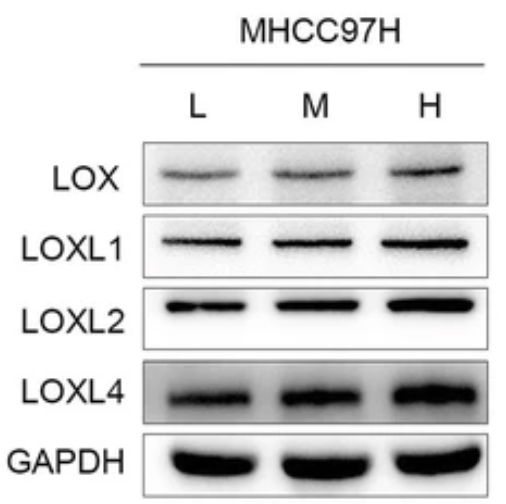 Fig.1 The protein expression level of LOX, LOXL1, LOXL2, LOXL4 in MHCC97H and Hep3B cells grown on 6 Kpa.