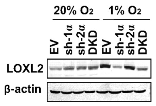 Fig.3 LOXL2 protein levels were analyzed in MDA-435 subclones.