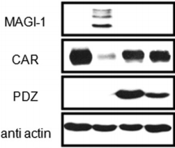 Fig.1 MAGI-1 PDZ3 decreases viral infection, while PDZ1 inhibits MAGI-1-mediated CAREx8 suppression to allow adenovirus infection.