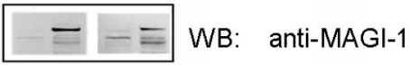 Fig.2 Binding of murine MAGI-1c protein to murine Cdh23.