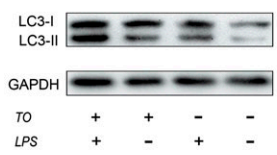Fig.1 Western blot analyses showing LC3-II level.