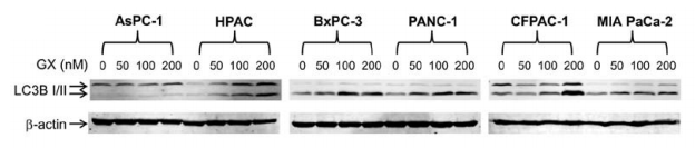 Fig.3 Soluble proteins were analyzed by western blot analyses probed with anti-LC3B or -β-actin antibody.