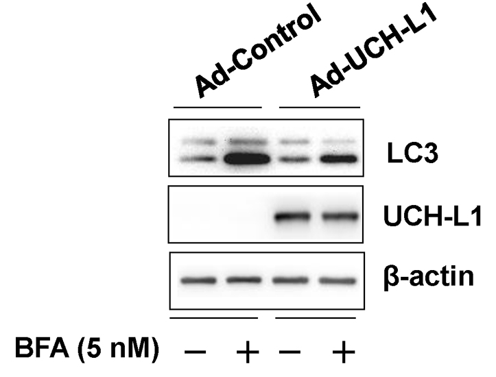 Fig.4 Effect of adenoviral overexpression of UCH-L1 on bafilomycin A1 (BFA)-induced accumulation of LC3.