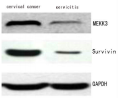 Fig.1 Expression of MEKK3 was Detected in Cervical Cancer by Western Blotting.