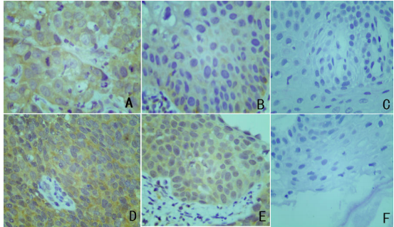 Fig.2 The Expression of MEKK3 and Survivin in Cervical Cancer, CIN, and Chronic Cervicitis.