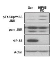 Fig.3 Knockdown of HIP-55 is correlated with increased HPK1-JNK signaling in lung cancer cells.