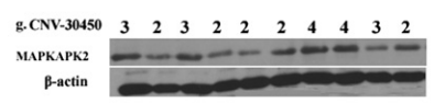 Fig.1 The MAPKAPK2 and b-actin protein band in lung cancer tissues.
