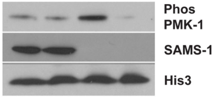 Fig.1 Control or sams-1 animals which were grown on normal media or media supplemented with dietary choline were immunoblotted with antibodies recognizing phospho-PMK-1, SAMS-1 or Histone 3.
