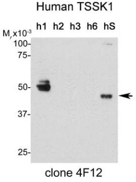 Fig.1 Validation of antibodies against human Tssks by immunoblot analysis.