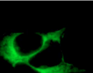 Fig.1 Cells transfected with TTC3 showed a dramatic reduction of neurite sprouting.