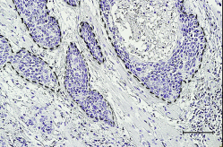 Fig.1 Immunohistochemical classification according to PD-1 expression patterns in the microenvironment at the invasive front of OSCC.