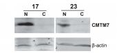 Fig.1 Downregulation of CMTM7 was detected in representative primary esophageal carcinomas by western blot.