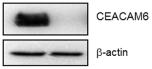 Fig.2 CEACAM6 expression in lung adenocarcinoma specimens and its relationship to overall survival.