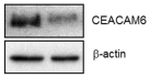 Fig.4 Western blot analyses of CEACAM6 expression in A549 tumors from mice injected with control vectorexpressing cells (A549/C) or miR-29a-expressing cells.