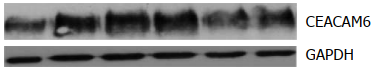 Fig.5 CEACAM6 expression analysis by Western Blot.