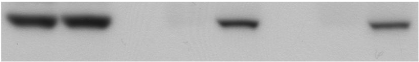 Fig.1 Whole-cell lysates from B-3.1 and B-3.2 were immunoprecipitated (IP) with a rabbit anti-CSK antibody.