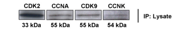Fig. 1 The bait-proteins for immunoprecipitations (IP) were detected with their respective molecular weights in the lysates.