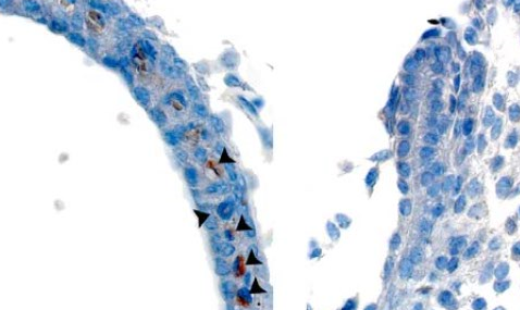 Fig.1 Immunohistochemistry on ear sections at postnatal day five shows Cpmx2 expression specifically in intermediate cells of stria vascularis.