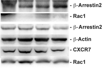 Fig.2 CXCR7 interacts with Rac1 to induce neural progenitor cell (NPC) migration.