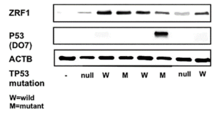 Fig. 1 Expression of ZRF1 in five GC cell lines and osteosarcoma cell lines, such as p53-null SaOS2 and p53 wild-type U2OS, compared with that in normal stomach and fibroblast cell line WI-38.