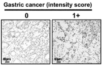 Fig. 2 Specific immunostaining of ZRF1 in a representative primary tumor sample.