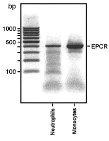 Fig.1 EPCR mRNA in neutrophils and monocytes. 1 μg total RNA from each sample was reverse transcribed into cDNA and amplified for the EPCR gene using PCR. EPCR is represented by the 409–base pair product.